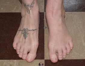 Bernadette Cremin's feet pictured side by side