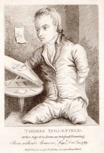 18th century print of a disabled man